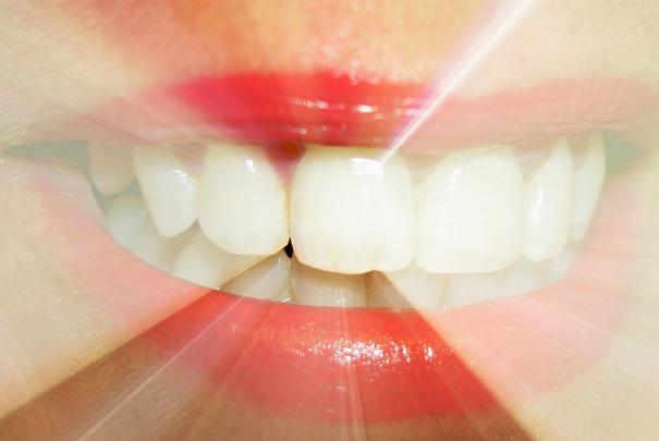 ... des prix et des pays d'origines des prothèses dentaires